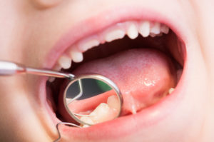 Closeup of kid or child mouth at dentist. Dental mirror and teeth reflection